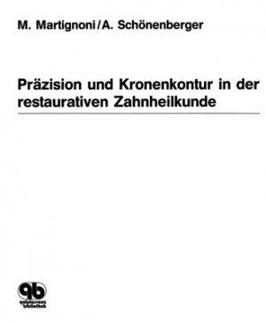 Präzision und Kronenkontur in der restaurativen Zahnheilkunde - M. Martignoni