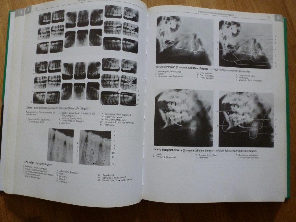 Röntgenanatomie Normalbefunde in Röntgen, CT, MRT, Ultraschall ...