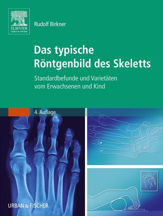 """Birkner Rudolf, Das typische Röntgenbild des Skeletts"""" – Bücher ..."""